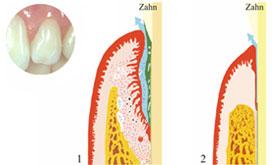 Parodontitis, krank und geheilt
